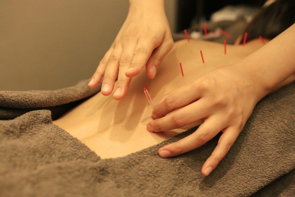 美容鍼灸と鍼灸治療の違い