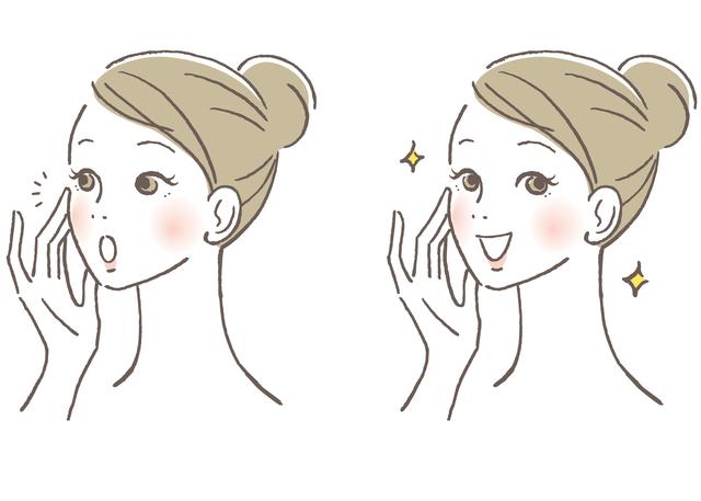 美容鍼灸リフトアップ