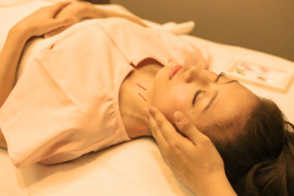 美容鍼灸 表情筋, 美容鍼灸筋肉のこり
