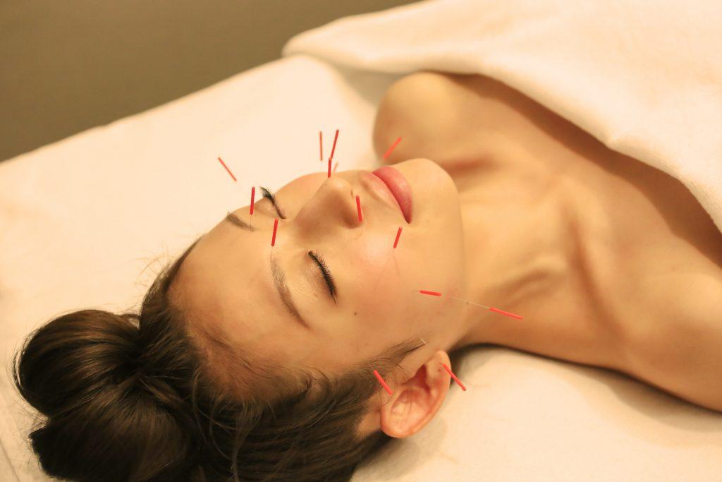美容鍼灸 副作用, 美容鍼灸 血行不良